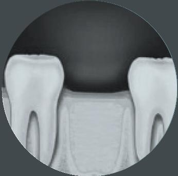 tandudtrækning pris